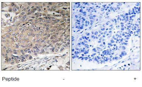 Immunohistochemistry (Formalin/PFA-fixed paraffin-embedded sections) - Anti-Dynein antibody (ab111177)