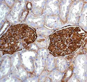 Immunohistochemistry (Formalin/PFA-fixed paraffin-embedded sections) - Anti-CD239 antibody [EPR4164] (ab111181)