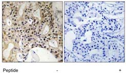 Immunohistochemistry (Formalin/PFA-fixed paraffin-embedded sections) - Anti-LATS1 antibody (ab111206)