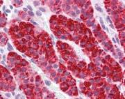Immunohistochemistry (Formalin/PFA-fixed paraffin-embedded sections) - Anti-p66 beta antibody (ab111248)