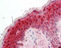 Immunohistochemistry (Formalin/PFA-fixed paraffin-embedded sections) - Anti-14-3-3 sigma (acetyl10) antibody (ab111305)