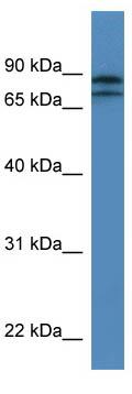 Western blot - Anti-KLHL22 antibody (ab111353)