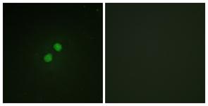Immunocytochemistry/ Immunofluorescence - Anti-p95 NBS1 (phospho S278) antibody (ab111373)