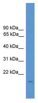 Western blot - Anti-CSN3 antibody (ab111406)
