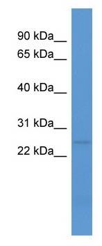 Western blot - Anti-C1QL1 antibody (ab111411)