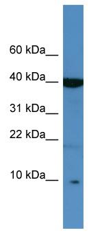 Western blot - Anti-SPINK6 antibody (ab111420)