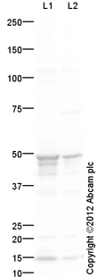 Western blot - Anti-Cytokeratin 17 antibody - Cytoskeleton Marker (ab111446)