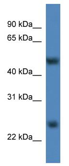 Western blot - Anti-METTL4 antibody (ab111494)
