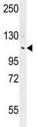 Western blot - Anti-ANKRD18B antibody (ab111536)