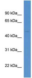 Western blot - Anti-AADACL1 antibody (ab111544)