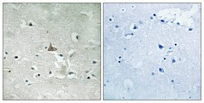 Immunohistochemistry (Formalin/PFA-fixed paraffin-embedded sections) - Anti-TrkB (phospho Y706 + Y707) antibody (ab111545)
