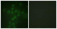 Immunocytochemistry/ Immunofluorescence - Anti-Telomerase reverse transcriptase (phospho S227) antibody (ab111584)