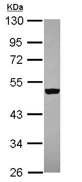 Western blot - Anti-ZNF584 antibody (ab111688)