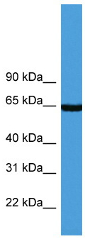 Western blot - Anti-Asparagine synthetase antibody (ab111873)