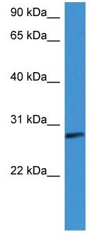 Western blot - Anti-Factor D antibody (ab111880)