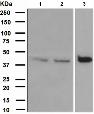 Western blot - Anti-DAP Kinase 2 antibody [EPR1634(2)] (ab111928)