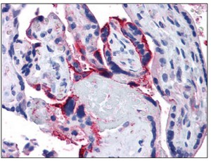 Immunohistochemistry (Formalin/PFA-fixed paraffin-embedded sections) - Anti-APH1a antibody (ab111992)