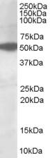 Western blot - Anti-AKT3 antibody (ab112002)