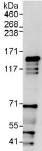 Immunoprecipitation - TTF2 antibody (ab112078)