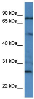 Western blot - Anti-Golgin 97 antibody (ab112084)