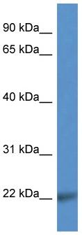 Western blot - Anti-CD99L2 antibody (ab112086)