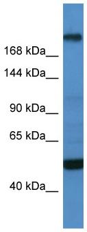 Western blot - Anti-Tcf20 antibody (ab112089)