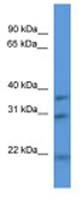 Western blot - Anti-NECAP1 antibody (ab112090)