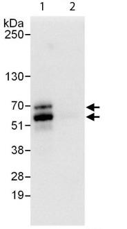 Immunoprecipitation - Anti-NFIC antibody (ab112097)