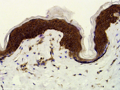 Immunohistochemistry (Formalin/PFA-fixed paraffin-embedded sections) - Anti-hair cortex Cytokeratin antibody (ab112444)
