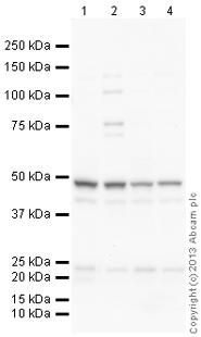 Western blot - Anti-hair cortex Cytokeratin antibody (ab112444)