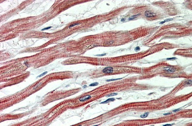 Immunohistochemistry (Formalin/PFA-fixed paraffin-embedded sections) - Anti-EPM2AIP1 antibody (ab112495)