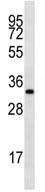 Western blot - Anti-LIX1L antibody (ab112952)