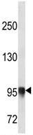 Western blot - Anti-PLOD3 antibody (ab113038)