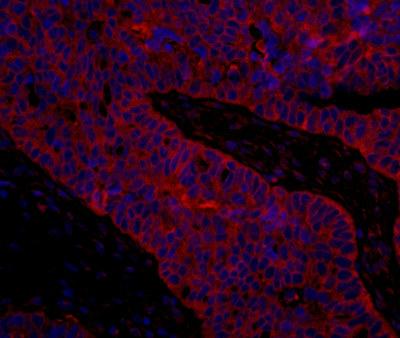 Immunohistochemistry (Formalin/PFA-fixed paraffin-embedded sections) - Anti-eIF3B antibody (ab113218)