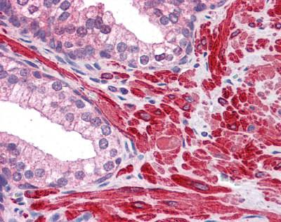 Immunohistochemistry (Formalin/PFA-fixed paraffin-embedded sections) - Anti-DPP8 antibody (ab113226)