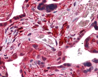 Immunohistochemistry (Formalin/PFA-fixed paraffin-embedded sections) - Anti-Fukutin antibody (ab113233)