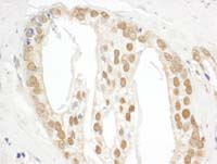 Immunohistochemistry (Formalin/PFA-fixed paraffin-embedded sections) - Anti-POP1 antibody (ab113272)