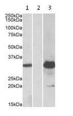 Western blot - Anti-KCTD11 antibody (ab113423)