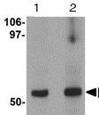 Western blot - Anti-GRINL1A antibody (ab113427)