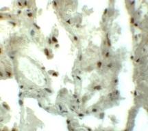 Immunohistochemistry - Anti-GRINL1A antibody (ab113427)