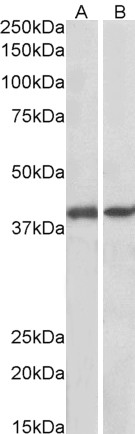 Western blot - Anti-GNAQ antibody (ab113429)
