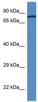 Western blot - Anti-Prothrombin antibody (ab113431)