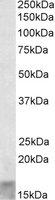 Western blot - Anti-SCOC antibody (ab113437)