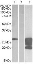 Western blot - Anti-GM2A antibody (ab113440)