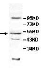 Western blot - Anti-SKIP antibody (ab113441)