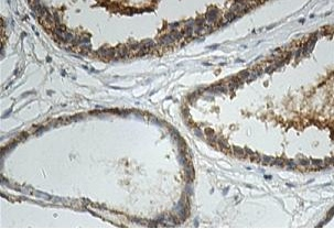 Immunohistochemistry (Formalin/PFA-fixed paraffin-embedded sections) - Anti-Inhibin beta A antibody (ab113489)