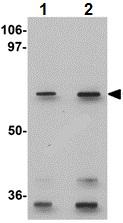 Western blot - Anti-GLS2 antibody (ab113509)