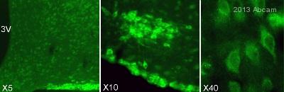 Immunohistochemistry (Frozen sections) - Anti-GLS2 antibody (ab113509)