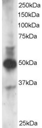 Western blot - Anti-GATA3 antibody (ab113519)
