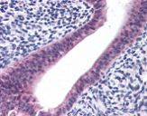 Immunohistochemistry (Formalin/PFA-fixed paraffin-embedded sections) - Anti-PTCHD2 antibody (ab113529)
